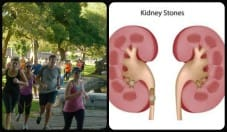 Exercise to Reduce Risk of Kidney Stones